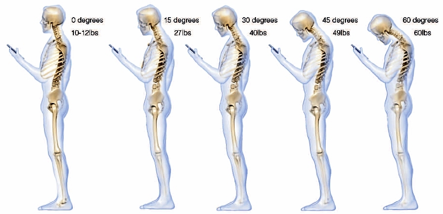 As The Head Tilts Forward The Forces Seen By The Neck Surge To  Kg At  Pounds 18 Kg At  Pounds 22 Kg At