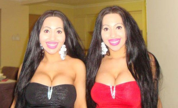 Twin sisters share a boyfriend, undergo $ 200k plastic surgery to look identical. (Photo: AP)