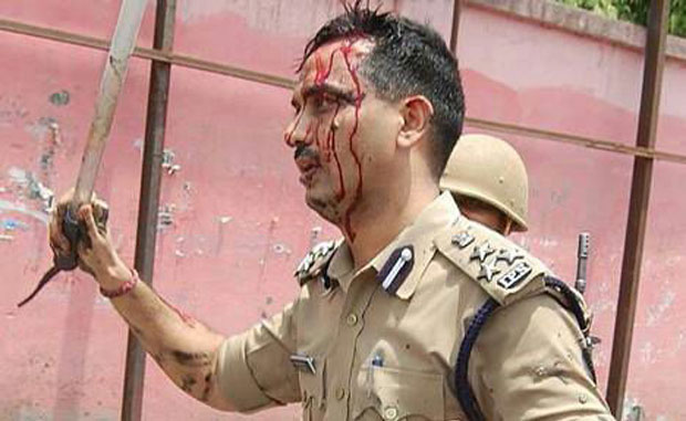 Injured UP DIG during one of the public protests. (Photo: DC)
