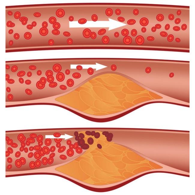 tips-turunkan-kolesterol-jahat.jpg