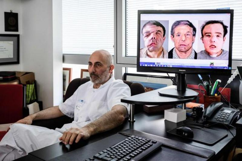 Laurent Lantieri poses next to a screen showing different steps of his patient Jerome Hamon's surgery on April 13, 2018. (Photo: AFP)