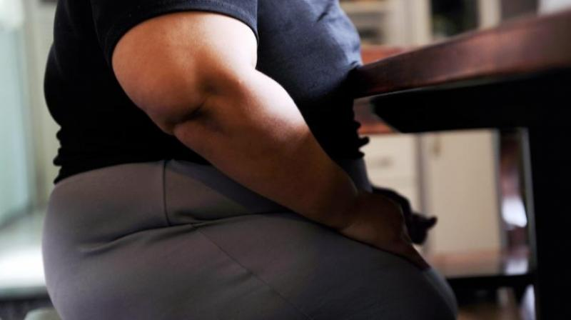 Experiencing weight stigma can elicit a physiological stress response (Photo: AFP)