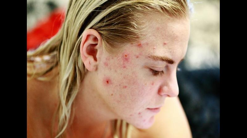 The results indicate that it is critical that physicians monitor mood symptoms in patients with acne. (Photo: ANI)