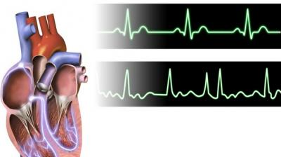 Irregular heartbeat, stroke more likely in tall people - The Asian Age