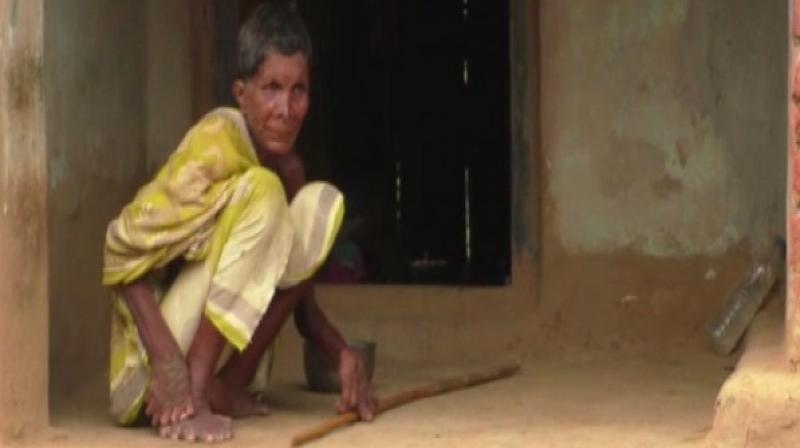 Giving in to society's disapproval for anything out of the ordinary, a woman in Odisha's Ganjam has confined herself to the four walls of her house simply for being born with 20 toes and 12 fingers. (Photo: ANI)