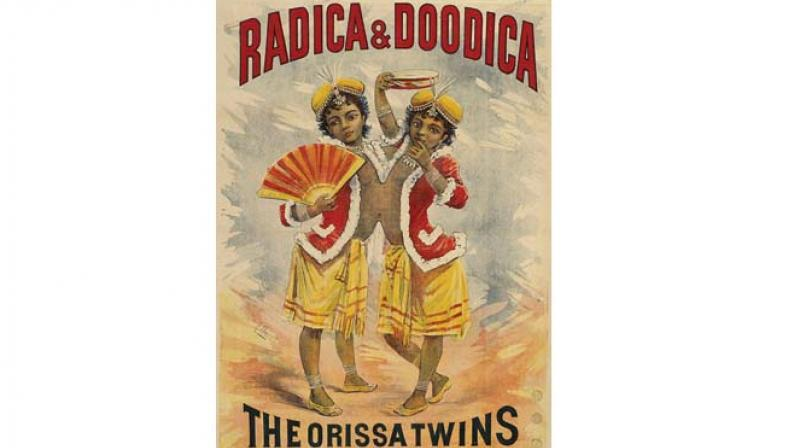 The twins — named Radhika and Doodica — were given secret burials in France after they died hours after separation surgery.