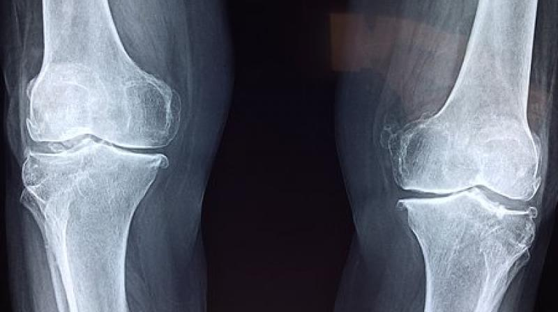 Osteoporosis is a bone disease that causes them to become extremely weak. (Photo: Representational/Pixabay)