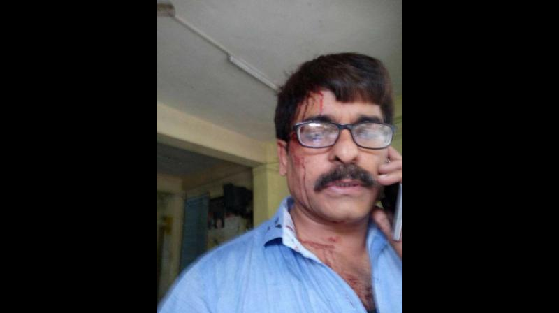 Sudhir Shukla, who works for a Hindi news channel, sustained injuries in the attack that took place between Mira Road and Andheri railway stations. (Photo; Facebook)