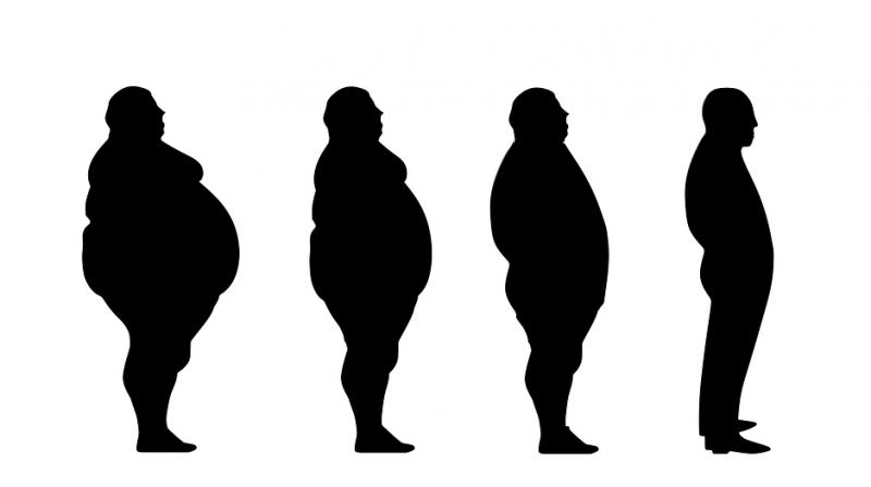 Weight Loss Surgery Doubles Risk Of Iron Deficiency