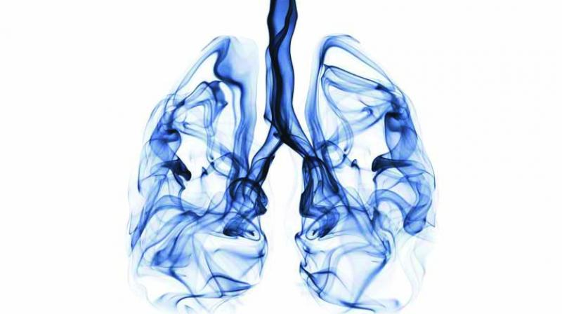 Interstitial Lung Disease (ILD) broadly describes a diverse collection of more than 200 lung disorders while tomography is a method of producing a three-dimensional image of the internal structures of a solid object such as the human body.