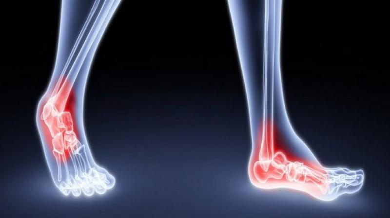 The association with Type 1 diabetes prior to the diagnosis of rheumatoid arthritis also was strong. (Photo: ANI)