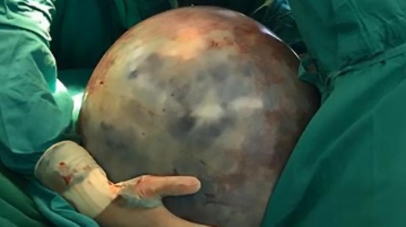 Such large tumours are common among women as compared to men since their bodies are designed to carry more weight in the abdomen (Photo: YouTube)