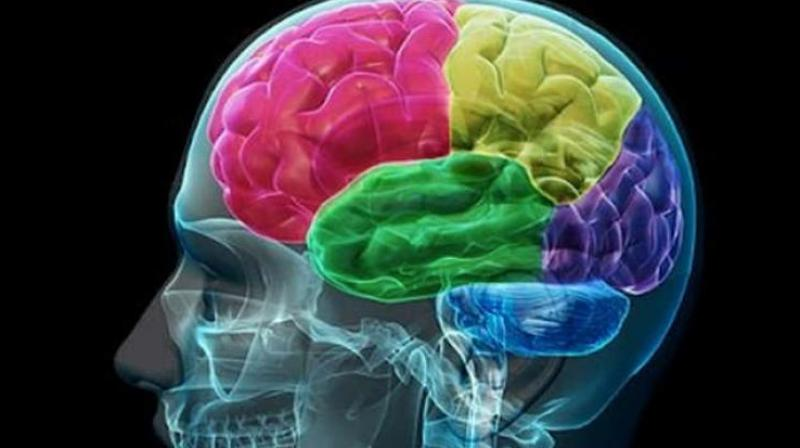 The study focused on gliomas, which make up about 80 percent of brain cancer diagnoses.(Photo: Youtube)