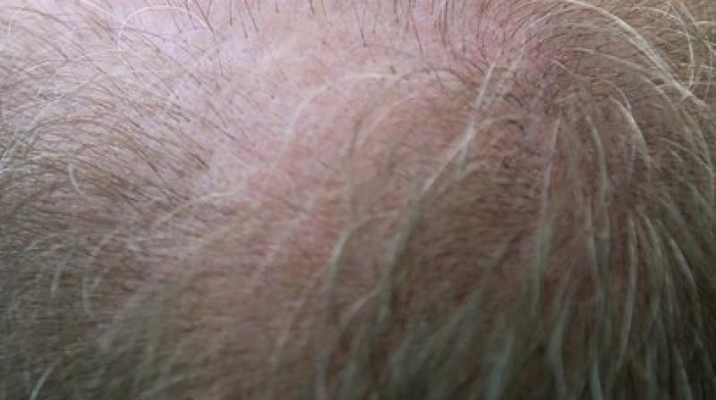 Hair loss troubles a substantial number of individuals all over the world, particularly in ageing societies. (Photo: Pixabay)