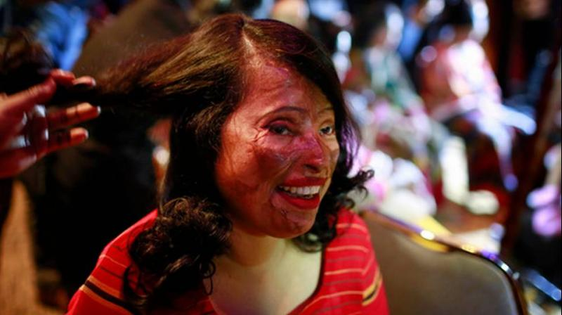 n this March 7, 2017 photo, a Bangladeshi acid attack survivor gets her make up applied during the event 'Beauty Redefined' in Dhaka, Bangladesh. (Photo: AP)