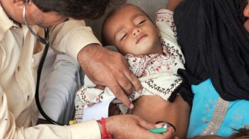 Most children under five die due to preventable or treatable causes (Photo: AFP)