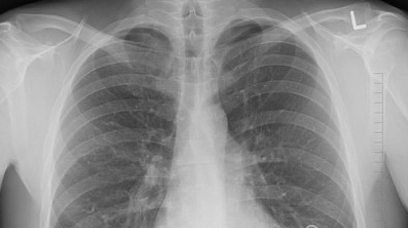 Patients with a history of TB have higher probability of having damaged lungs. (Photo: Representational/Pixabay)