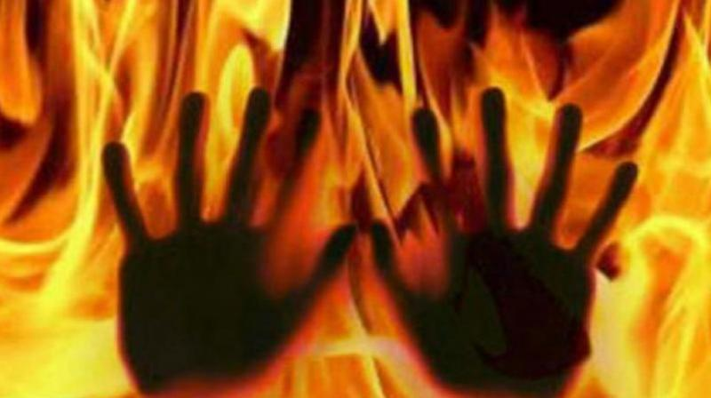 The girl, a Class 12 student, set herself ablaze at her house on Wednesday. Representational Image (Photo: File)