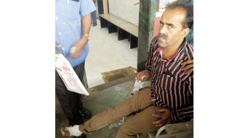 Kamlesh Vadhwani injured his foot in the accident.