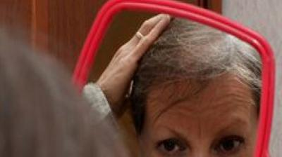 Breakthrough discovery to prevent hair loss from chemotherapy - The Asian Age thumbnail