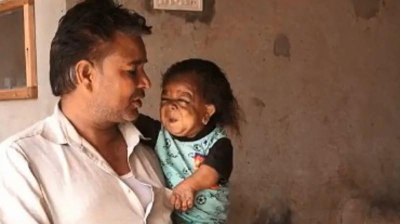 Scientists suspect Manpreet may have a rare condition called Laron Syndrome (Photo: YouTube)