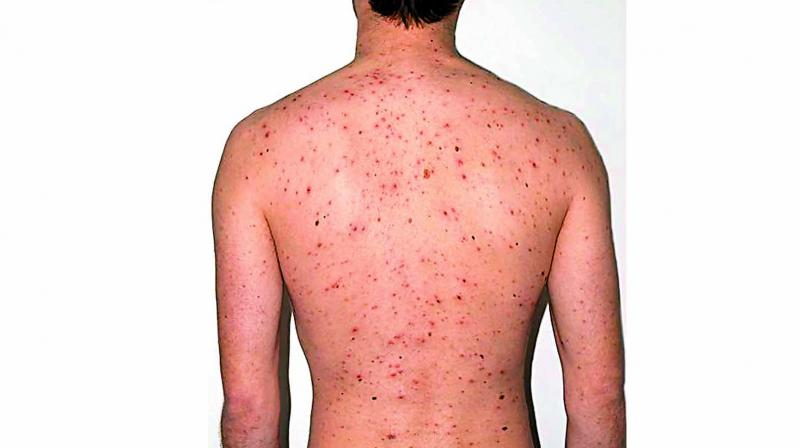 The combination of extreme heat and humid conditions are the major reasons for chicken pox.