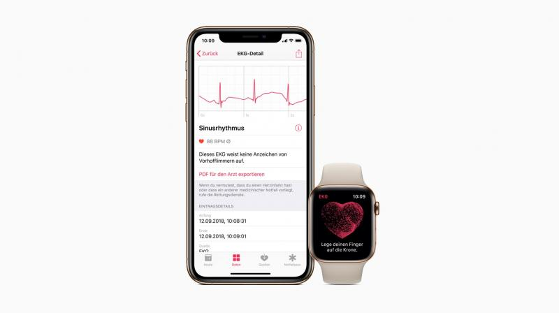 The ECG app and irregular rhythm notification feature can alert users to signs of AFib.