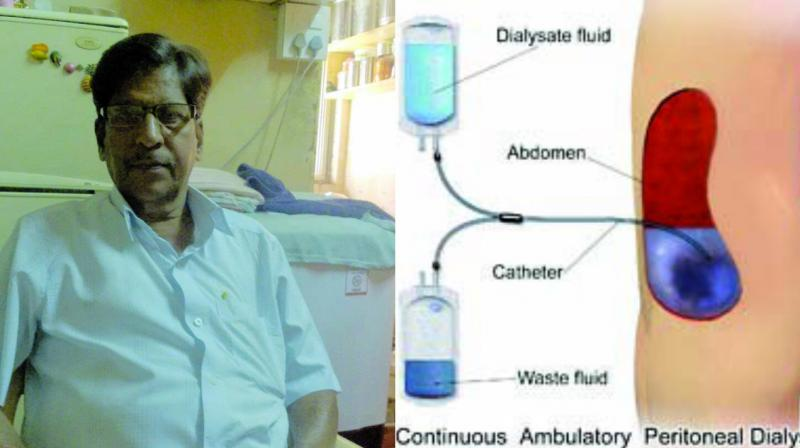 Prakash More does the dialysis procedure thrice in 24 hours.