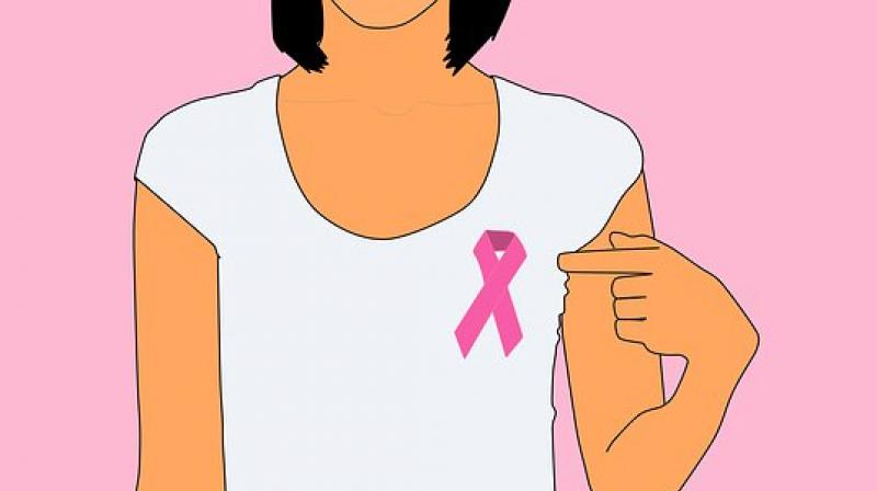 Metastatic breast cancer is cancer that has spread to other sites in the  body, and