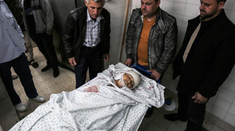 Relatives of 15-year-old Palestinian teenager Azzam Oweida gather around his body in the morgue of a hospital in Khan Yunis in the southern Gaza Strip on April 28, 2018, as he succumbed to his wounds a day after he was shot by Israeli forces in clashes along the Gaza border. (Photo: AFP)