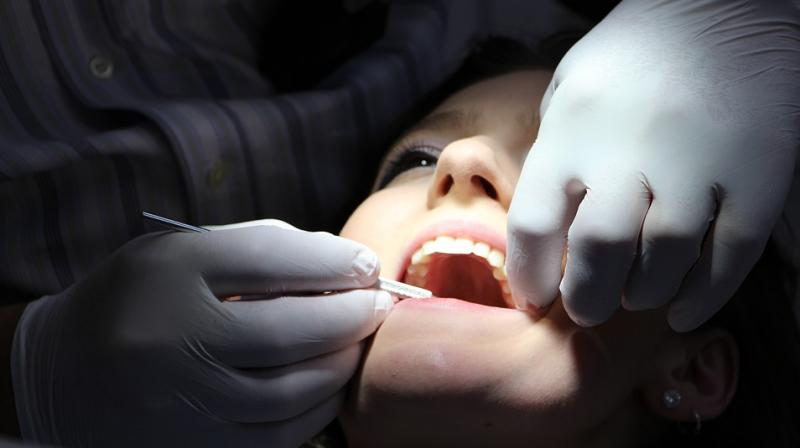 An Indian-origin dentist has been banned from practising dentistry for a year after one of his patients bled to death, hours after he had extracted her teeth in a procedure over two years ago. (Representational Image)