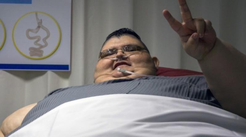 In the first procedure, surgeons will remove more than three-quarters of the patient's stomach (Photo: AP)