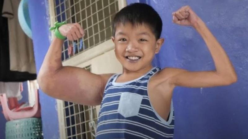 Daniel's classmates at his school in Rizal, the Philippines, bullied him over the abnormal appearance but he hit back - telling them that he was like cartoon hero Popeye. (Photo: AP)