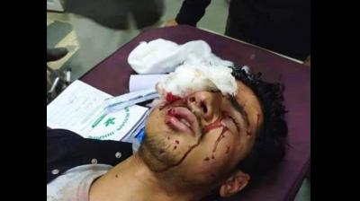 [The Asian Age]At least 19 injured in pellet firing, teargas shelling on Shia mourners in J-K's Srinagar