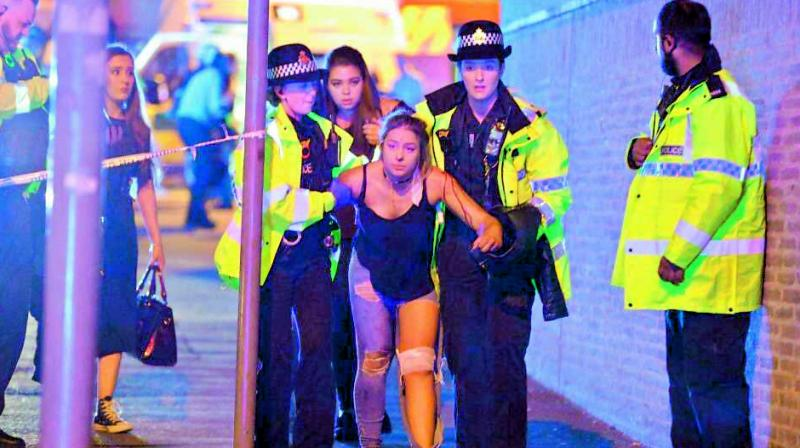 An injured fan being escorted from the scene of a terrorist attack during a pop concert by US star Ariana Grande in Manchester, northwest England. (Photo: AP/File)