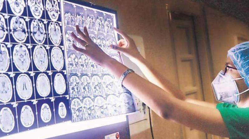 The disease is being detected among patients who are recovering or have recovered from COVID-19. (Representative Image: PTI)