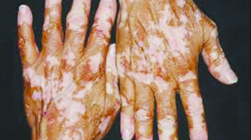 Drdo Team Eyes Improved Vitiligo Remedy