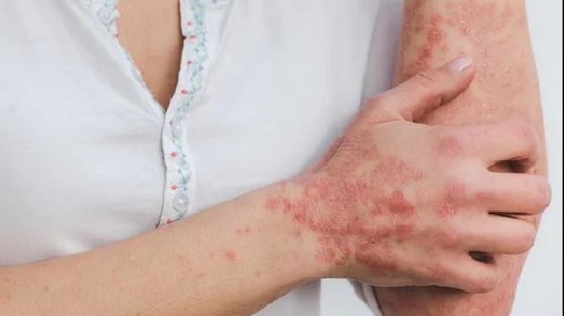Many post-Covid patients with skin complications are rushing to OPDs. (Photo: Representational/Pixabay)
