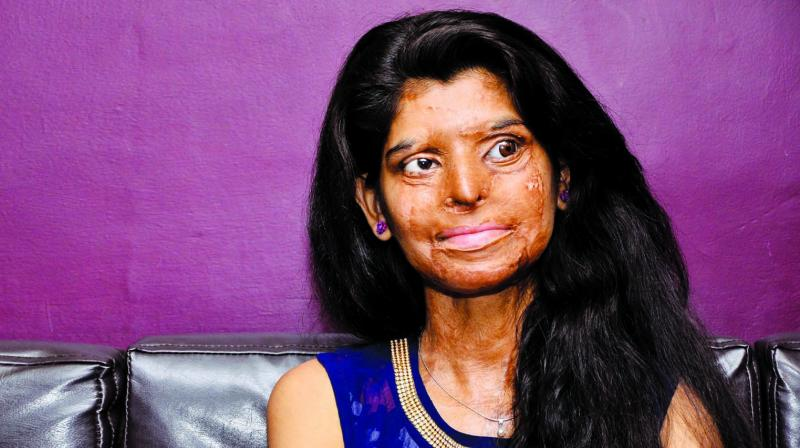 Ritu was not one to give up and got in touch with team 'Stop Acid Attacks' of Chhanv Foundation.