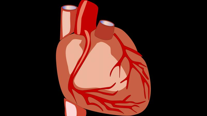 Cardiovascular disease is considered a global epidemic with 80 per cent of the burden of the illness in low-income and middle-income countries. (Photo: Pixabay)