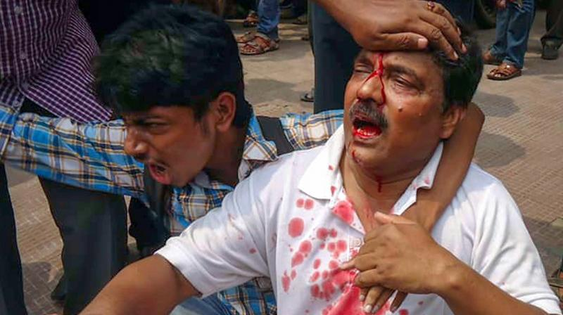A man with injuries during a violent clash between members of two political parties at panchayat polls' nomination filing in Burdwan on Saturday. (Photo:PTI)