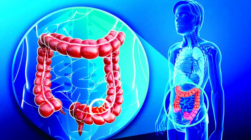 Common symptoms of colon cancer are change in bowel habits, such as diarrhea, constipation or narrowing of the stool that lasts for more than a few days, rectal bleeding, dark stool or blood in stool, weakness, fatigue and weight loss.