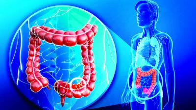 Watch Out For Colon Cancer