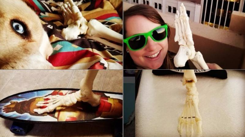 The woman managed to convince doctors to let her keep the amputated foot after she was diagnosed with a rare cancer (Photo: Instagram)