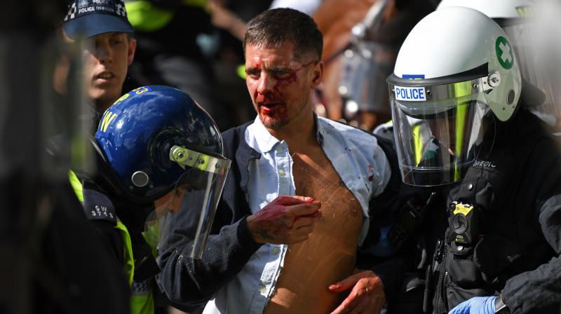 An injured man is taken away by police after fights take place in Trafalgar Square. (AFP)
