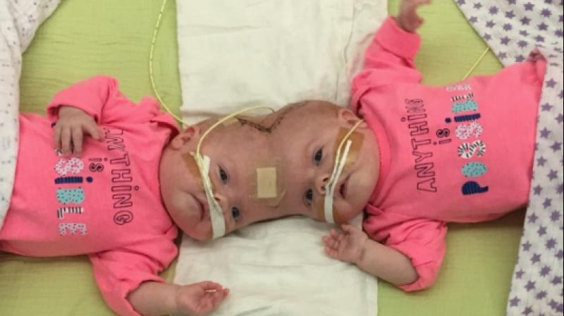 The girls joined at the head suffered from a rare condition even among conjoined twins called craniopagus because of which they had quite a lot of trouble. (Photo: Facebook/ConjoinedDelaneyTwins)