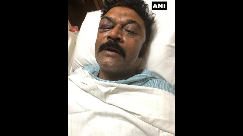 Ganesh had allegedly attacked Singh (in picture) with his fists and a flowerpot hit him near his eye and kicked him on his chest, according to the complaint filed with the police. (Photo: File)