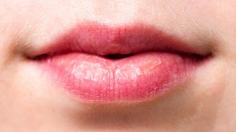 Lips not only symbolize one's beauty but also it talks about one's healthy appearance. (Photo: Pixabay)