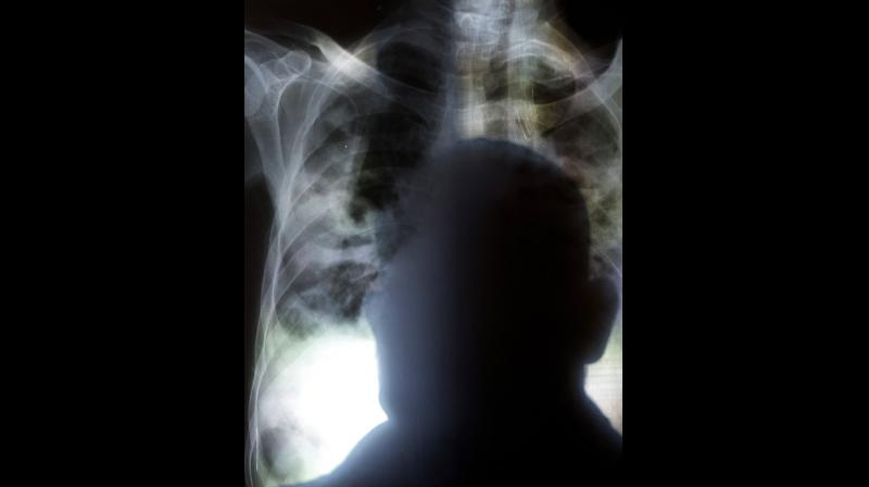 TB is a leading killer of HIV-positive people: in 2016, 40% of HIV deaths were due to TB. (Photo: AP)