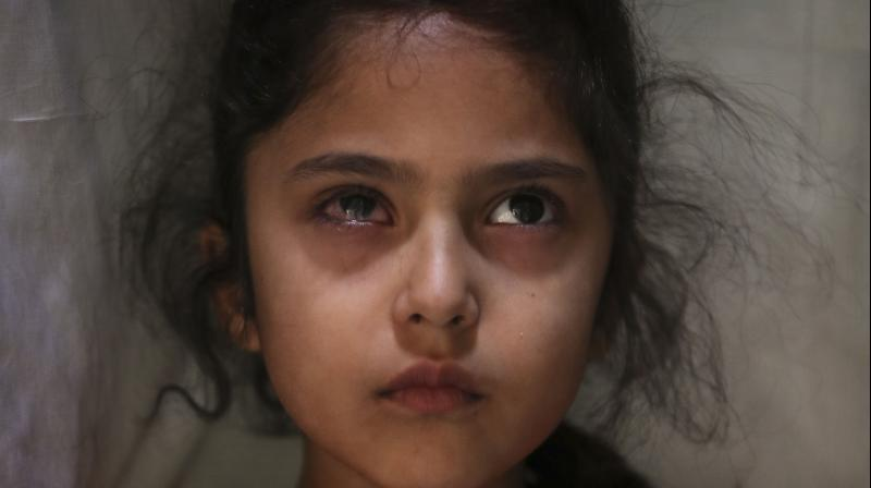 Six-year-old Muneefa Nazir, a Kashmiri girl whose right eye was hit by a marble ball shot allegedly by Indian paramilitary soldiers on August 12, 2019. This image was part of a series of photographs by Associated Press photographers which won the 2020 Pulitzer Prize for Feature Photography. (AP/Mukhtar Khan)